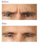 botox man before and after