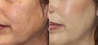 skin-photorejuvenation1