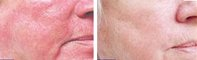 skin-photorejuvenation2