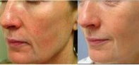skin-photorejuvenation3