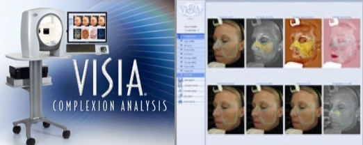 VISIA SKin Analysis at RMI